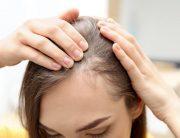 review tonic, tonic rambut, tonic untuk rambut rontok, tonic rambut rontok